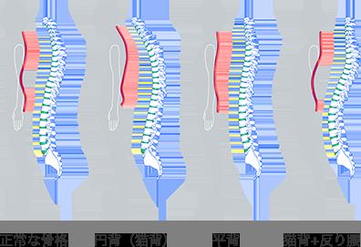 骨格や姿勢のタイプ